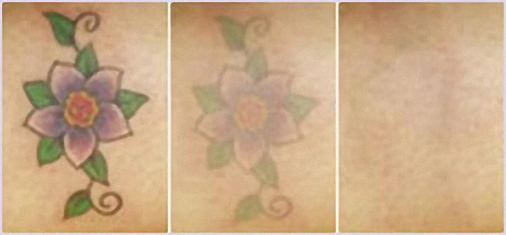 Aloe Vera Yogurt Tattoo Removal: Fresh Aloe Vera Gel, Salt, Sugar Free Yogurt & Honey. Mix
