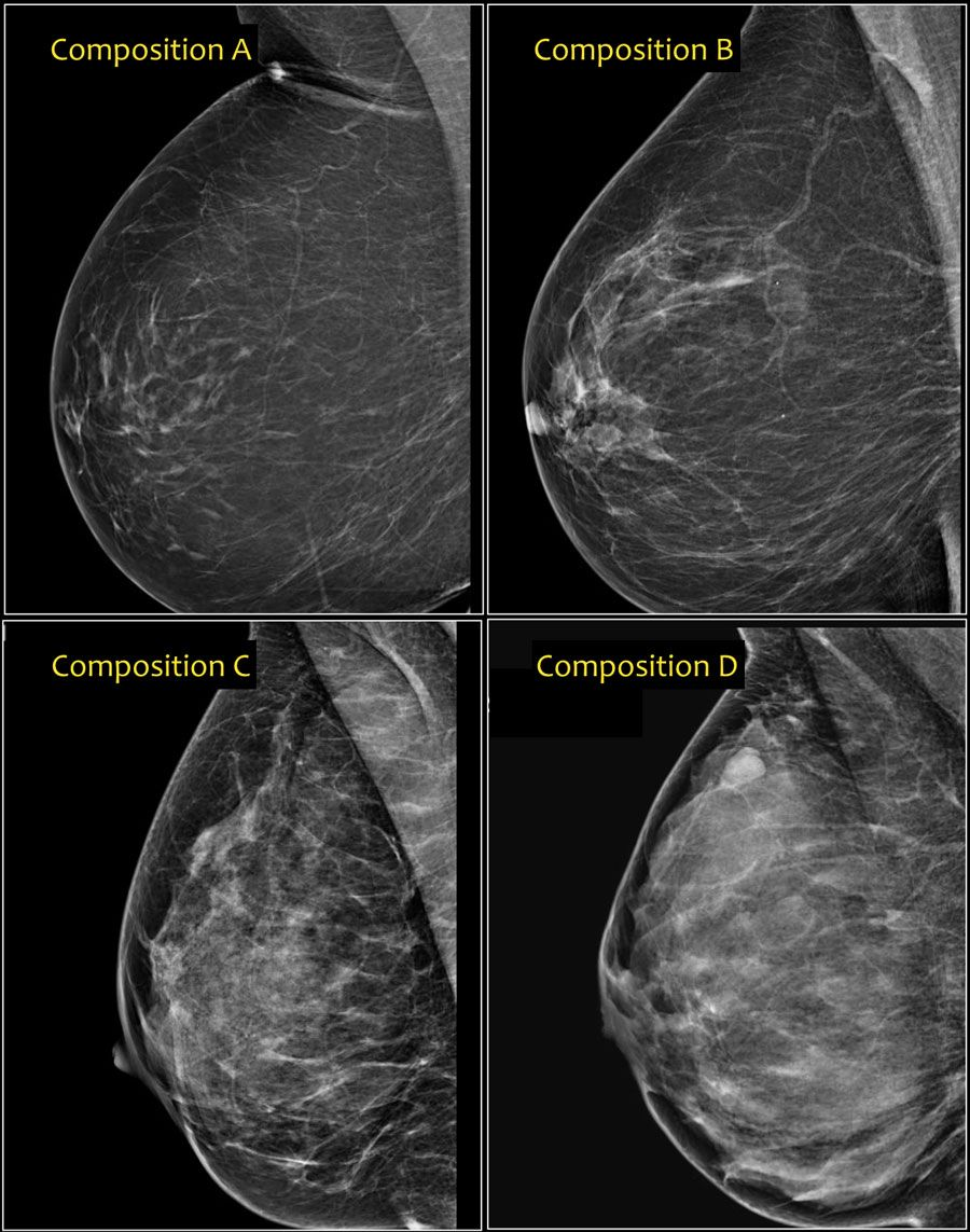 mammograms mammograms ultrasound breast cancer
