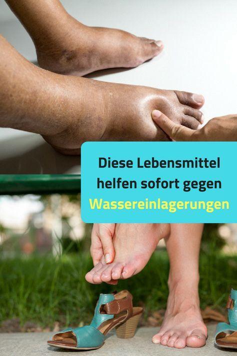 Geschwollene Fusse Geschwollene Beine Lebensmittel Helfen Beim Entwassern Entwasserung Korper Schnell Lebensmittel Helfen Beim Entwasser Geschwollene Beine Gesundheit Und Gesundheit Und Wellness