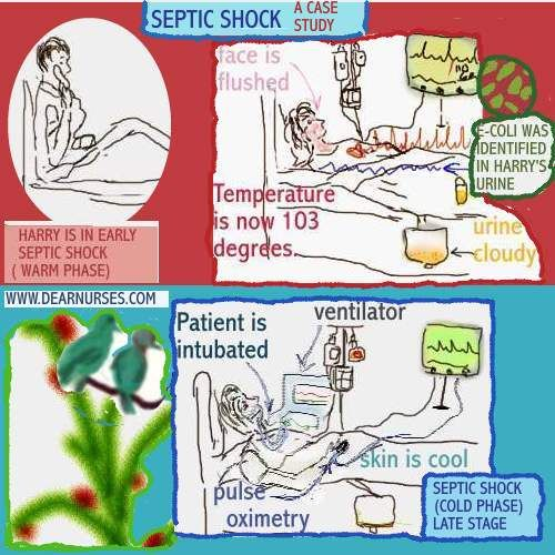 Case Study of Spina Bifida  INTRODUCTION Spina bifida comes from the latin  word    divided spine         SlideShare