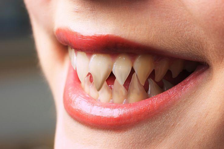 Sharp Teeth Google Search Webseries Pinterest Teeth