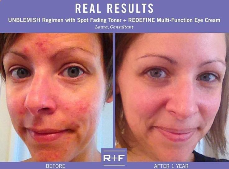Do You Know Anyone With Severe Acne Post Acne Scars