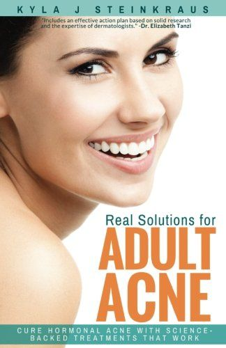 Real Solutions For Adult Acne Cure Hormonal Acne With Sciencebacked Treatments That Work You Can Find More Details By Visiting The Image Link
