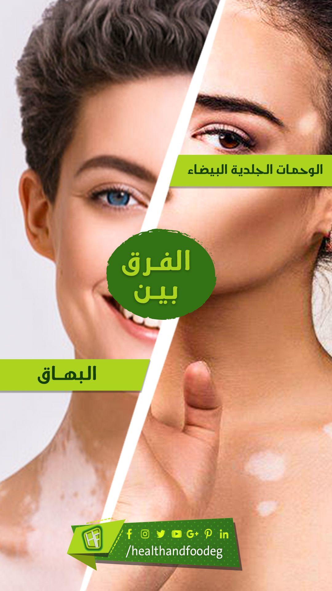 أضف استشارتك الدكتور احمد ابو النصر Incoming Call Incoming Call Screenshot