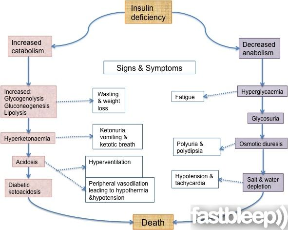 Diabetic Ketoacidosis - Endocrinology | Fastbleep | DM! | Pinterest