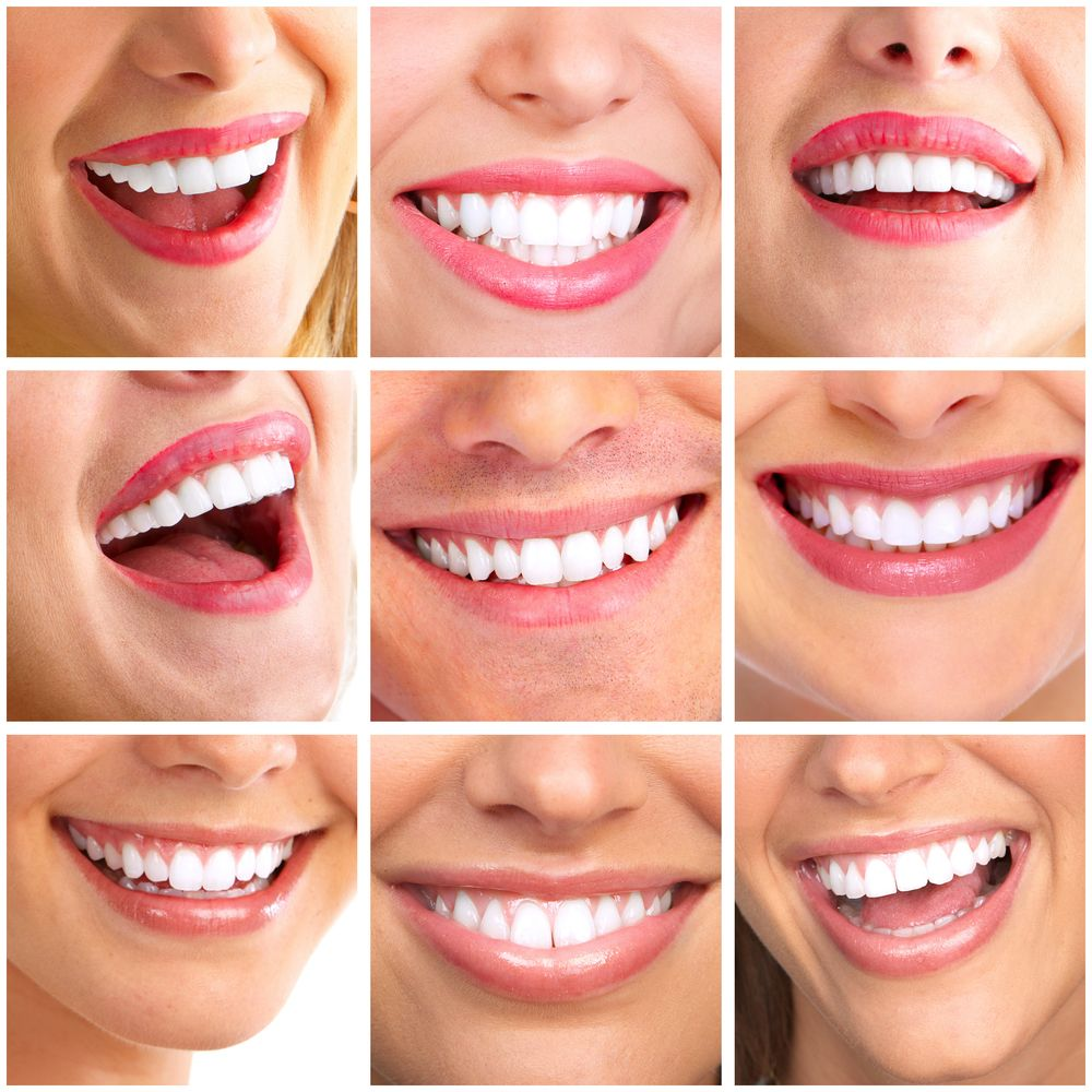 perfect smile veneers аналоги