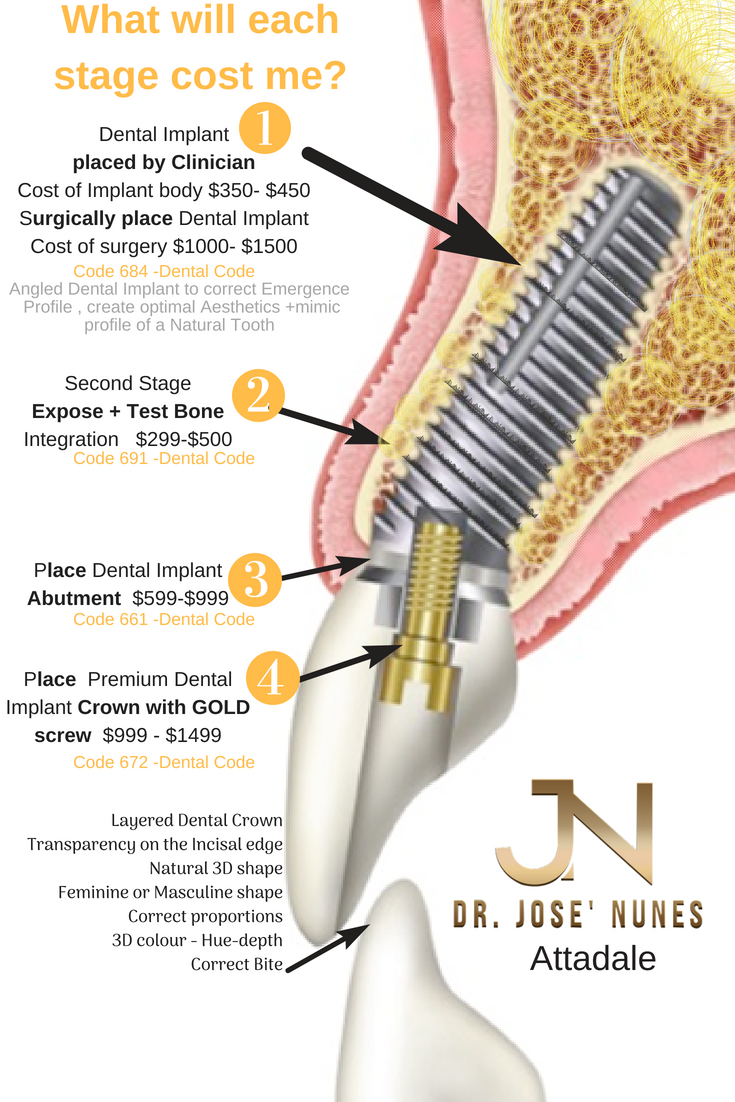 attadale residents needing affordable dental implants and quotes prices for each stage listed here