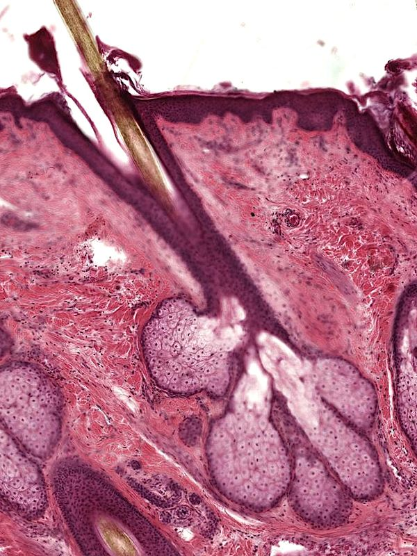 Sebaceous Glands Are Microscopic Exocrine Glands In The Skin That