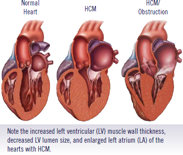 hypotrophic cardiomyopathy Hypertrophic cardiomyopathy (hcm) is a complex but relatively common form of genetic heart muscle disease that occurs in 1 out of 500 people, but often goes.