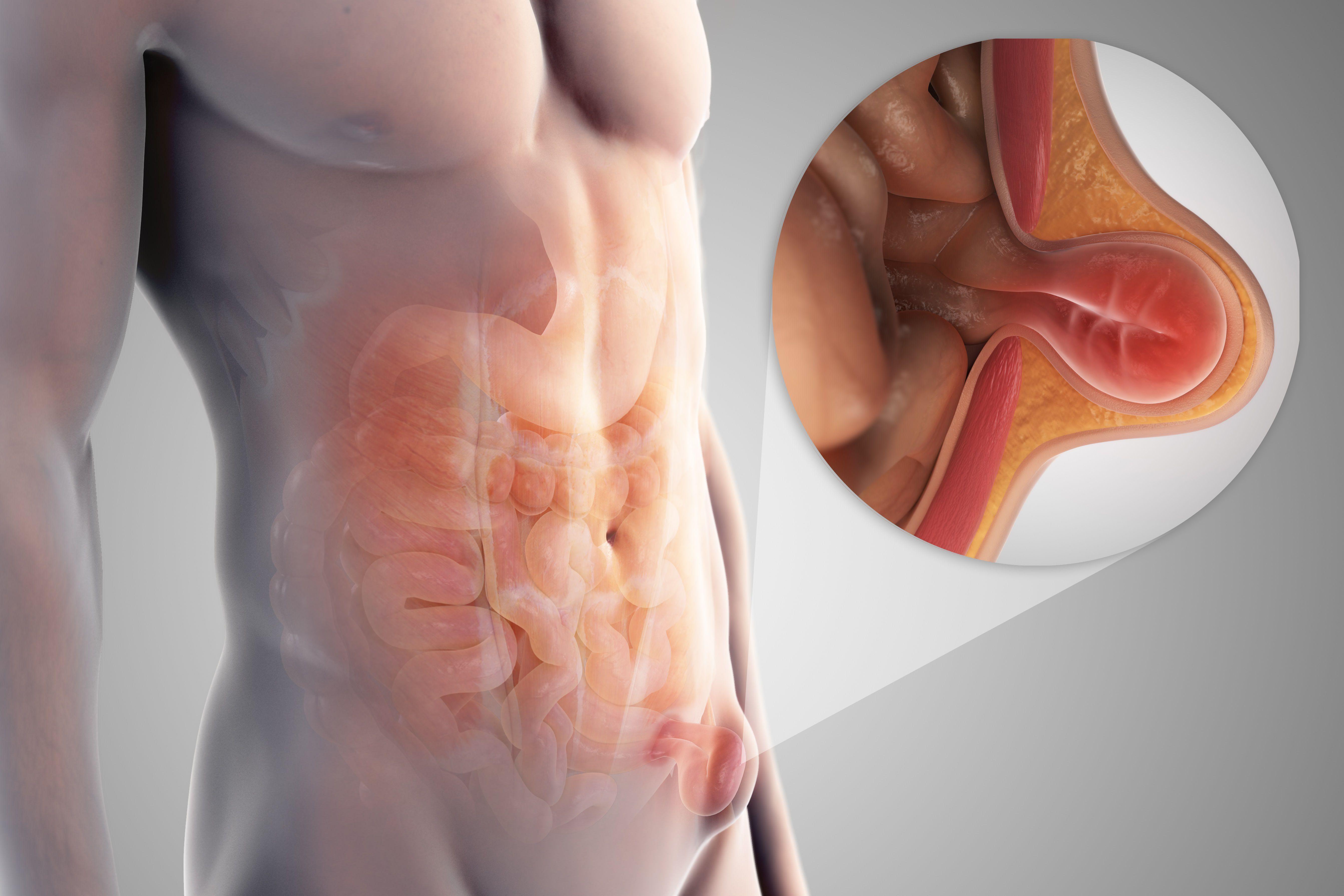 sintomas de hernia genital