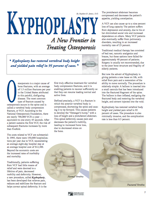 31+ To treat osteoporosis related compression fractures ideas
