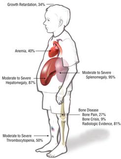 Http Bipamericahealthtips Blogspot In 2016 08 Harmful Effects Of Gauchers Disease Html Gaucher S Disease Disease Rare Genetic Disorders