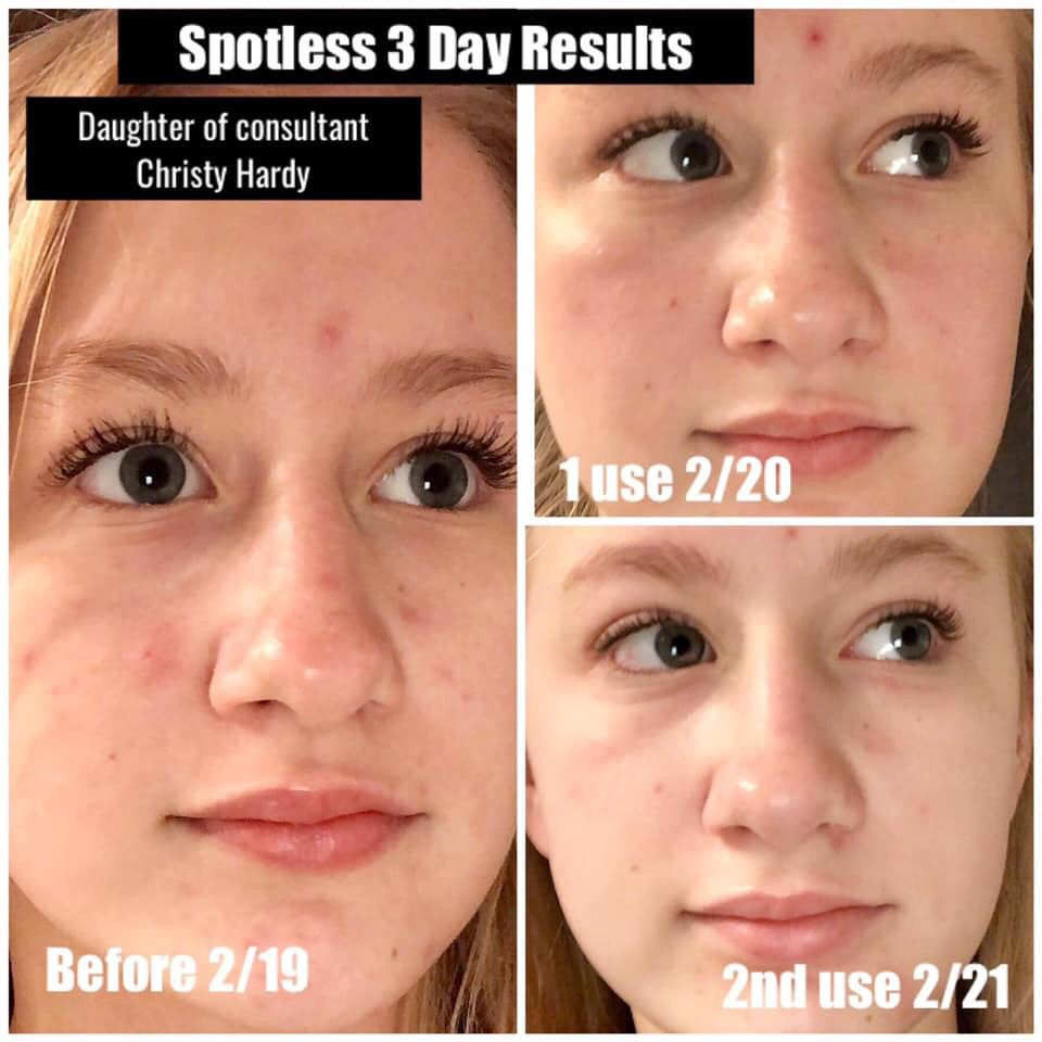 Spotless Regimen Rodan And Fields Clear Skin Detox Skin