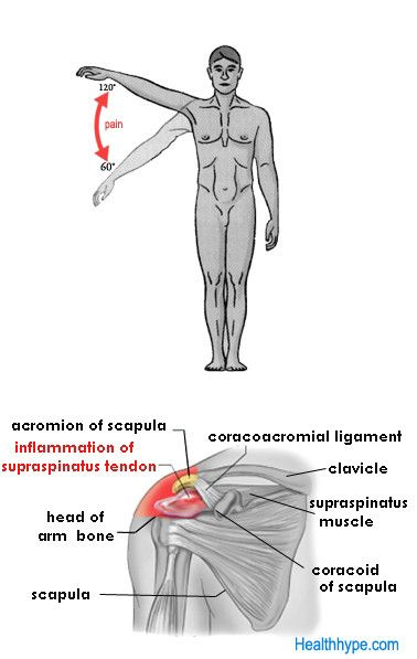 Supraspinatus Tendinitis Causing Painful Arc Syndrome Massage