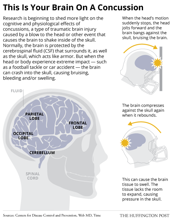The Devastating Health Impact Of >> The Devastating Health Impact Of Concussion May Start