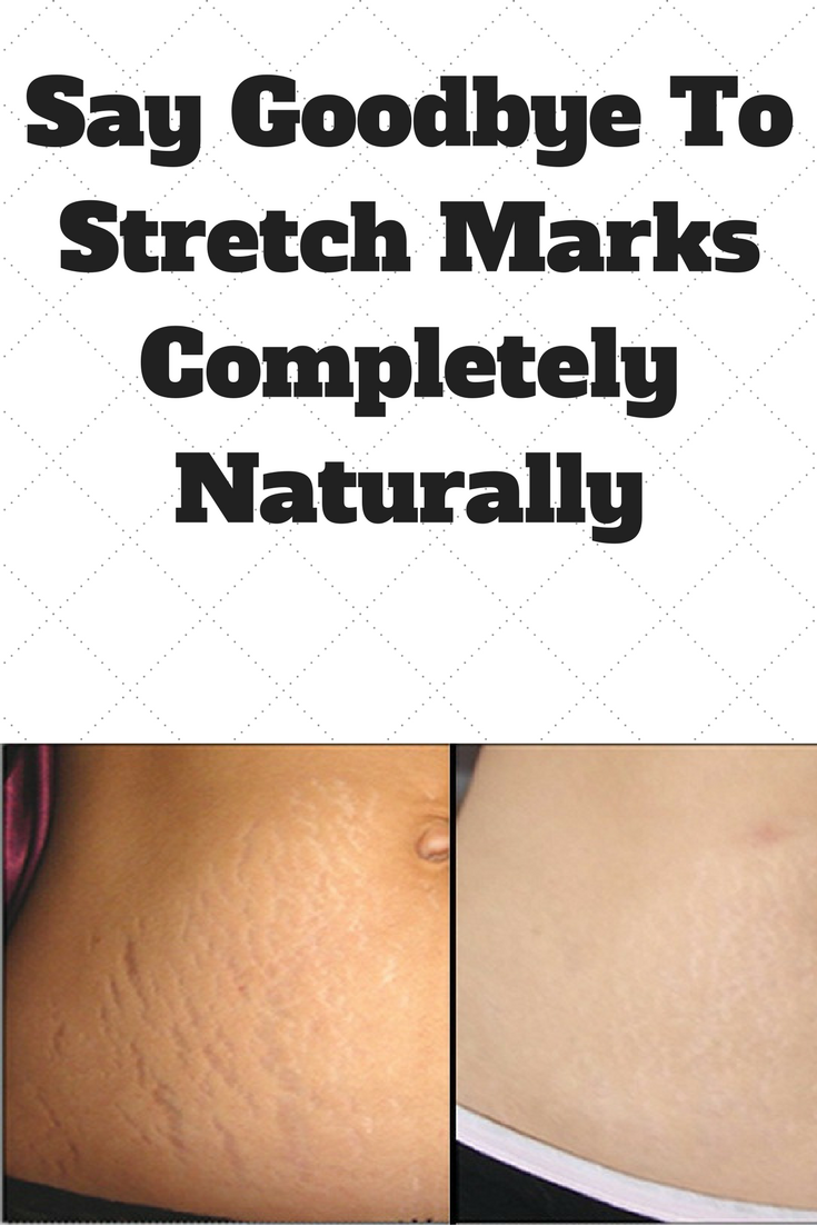 Say Goodbye To Stretch Marks Completely Naturally