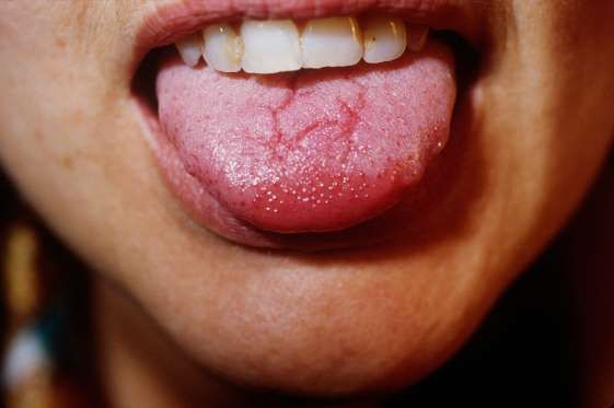 on map tongue disease