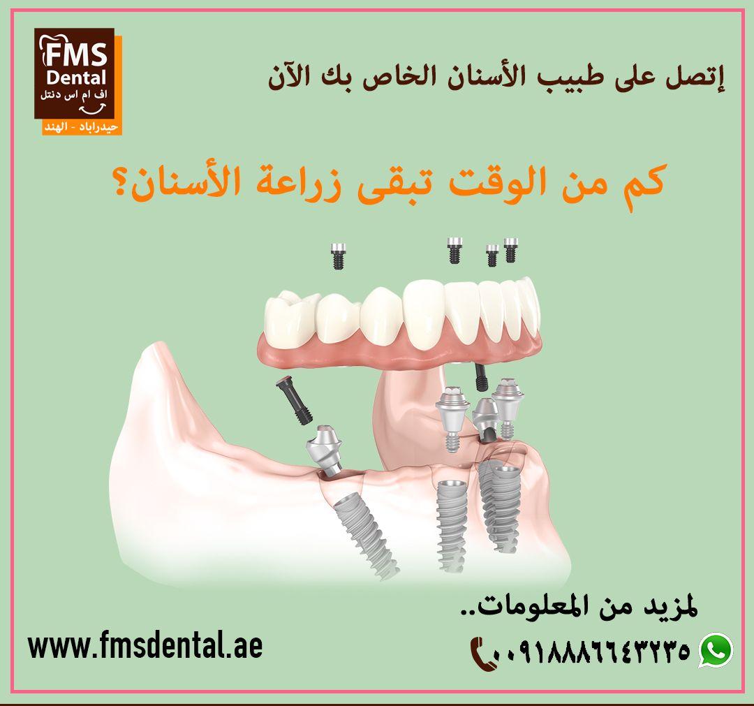 زراعة الأسنان مرحبا بكم في أفضل عيادة زراعة أسنان في حيدراباد الهند هل أنت مرشح لزراعة الأسنان مع تقدم التكنولوجيا يعتبر ع Dental Implants Dental Implants