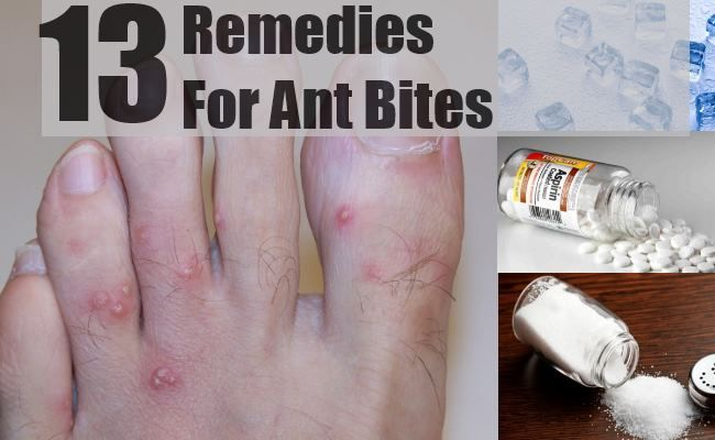 how to get rid of sandfly bites