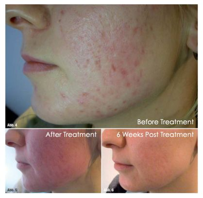 Pin On Dermapen Microneedling Therapy