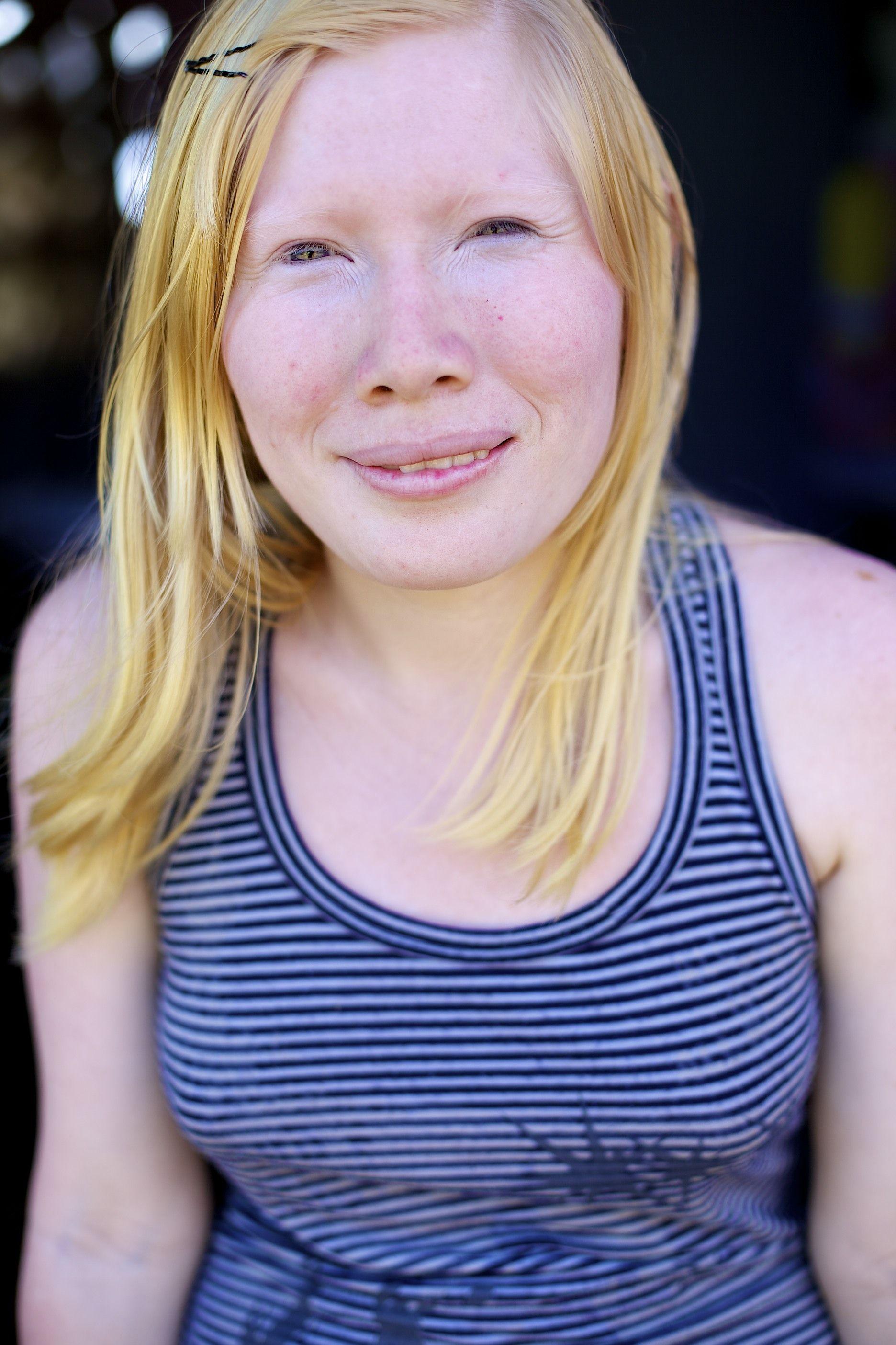 Albino dating