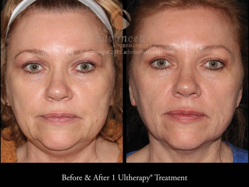 Pin By Advanced Dermatology On Skin Tightening Before After Photos Ultherapy Treatment Ultherapy Skin Tightening