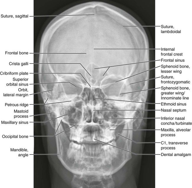Normal Anatomy | Radiology student, Radiology imaging ... X Ray Skull 4 Views