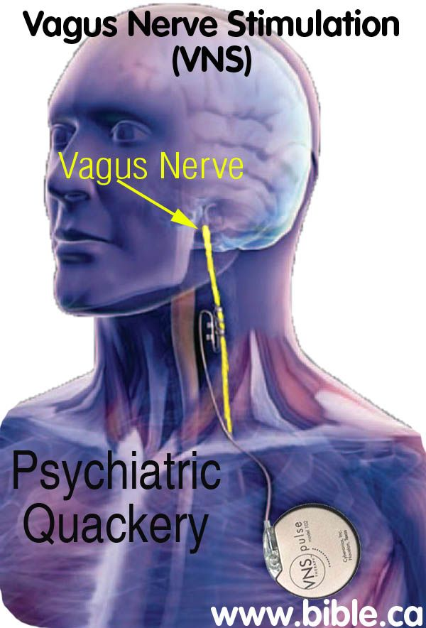 Vagus Nerve Stimulation (VNS): Mental Illness Depression, Brain ...