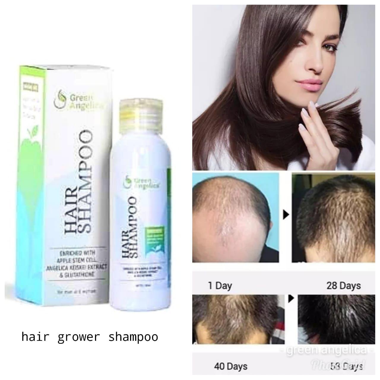 Shampo Penumbuh Rambut Rontok Dan Hilangkan Ketombe Green Angelica Ketombe Rambut Rontok Rambut