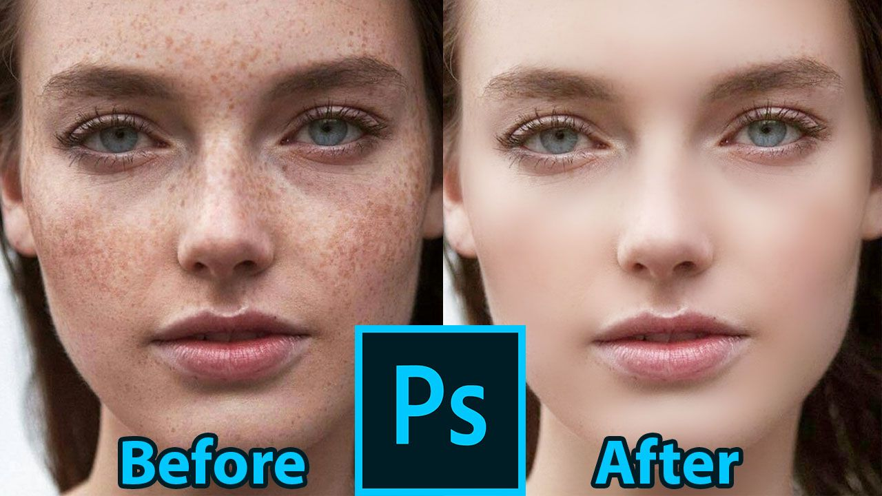 How to quickly remove pimples and make a smooth skin in