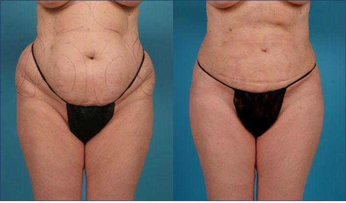 Lipo Sculpture | SunCoast Premier Medical