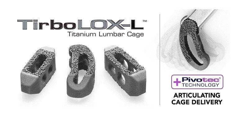 Captiva Spines S Tirbolox L Dual Layer Organic Lattice Structure 3d Printed Titanium Lumbar Cages Receive Clearance Lattice Structure Lattice Captiva