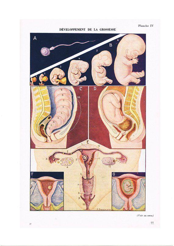 Instant Download Foetus Poster 1957 Digital Pregnancy Poster Digital