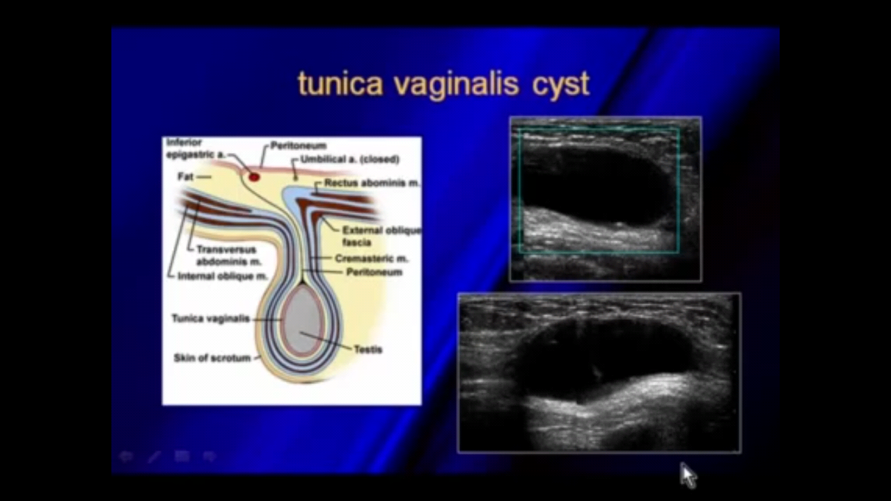 Ultrasound of hernias Ultrasound, Tunica, Cysts