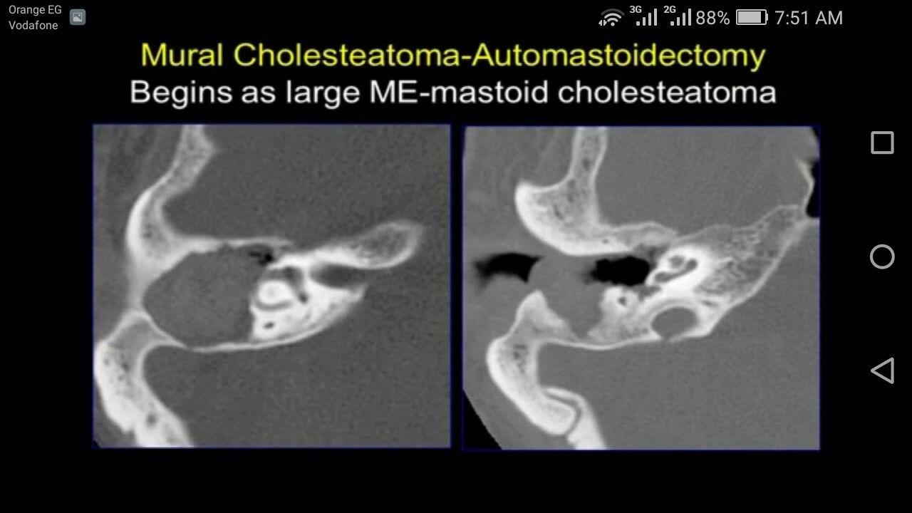 Huge Cholesteatoma Petrous Bone Pinterest