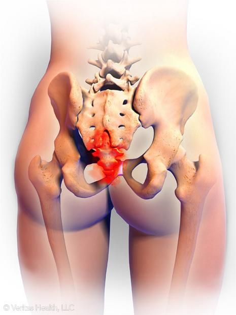 Persistent Pain At The Bottom Of Your Spine May Be A Sign