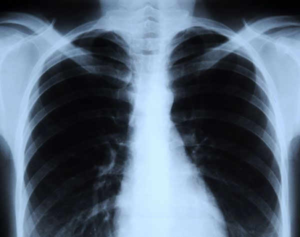 medical uses of regular x rays Your doctor may use diagnostic imaging techniques to help narrow the causes of   these imaging techniques may include x-rays, computed tomography (ct).