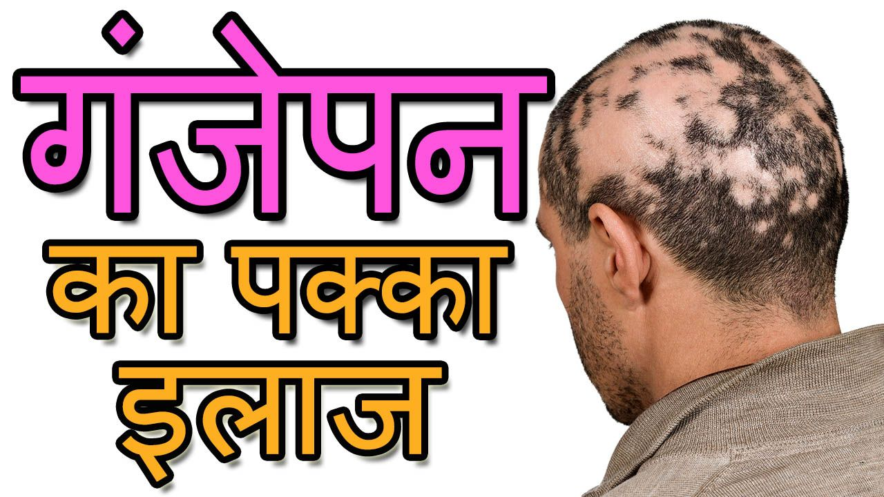 गंजेपन का पक्का इलाज,No more Bald Patches