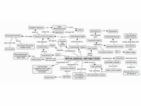 Concept Map of Myocardial Infarction   YouTube | Nursing