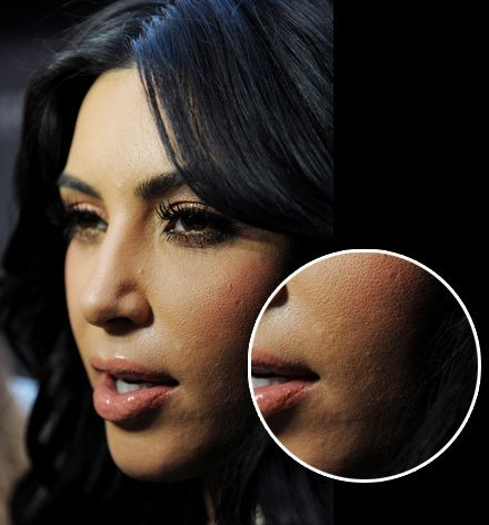 Image result for celebs with pimples