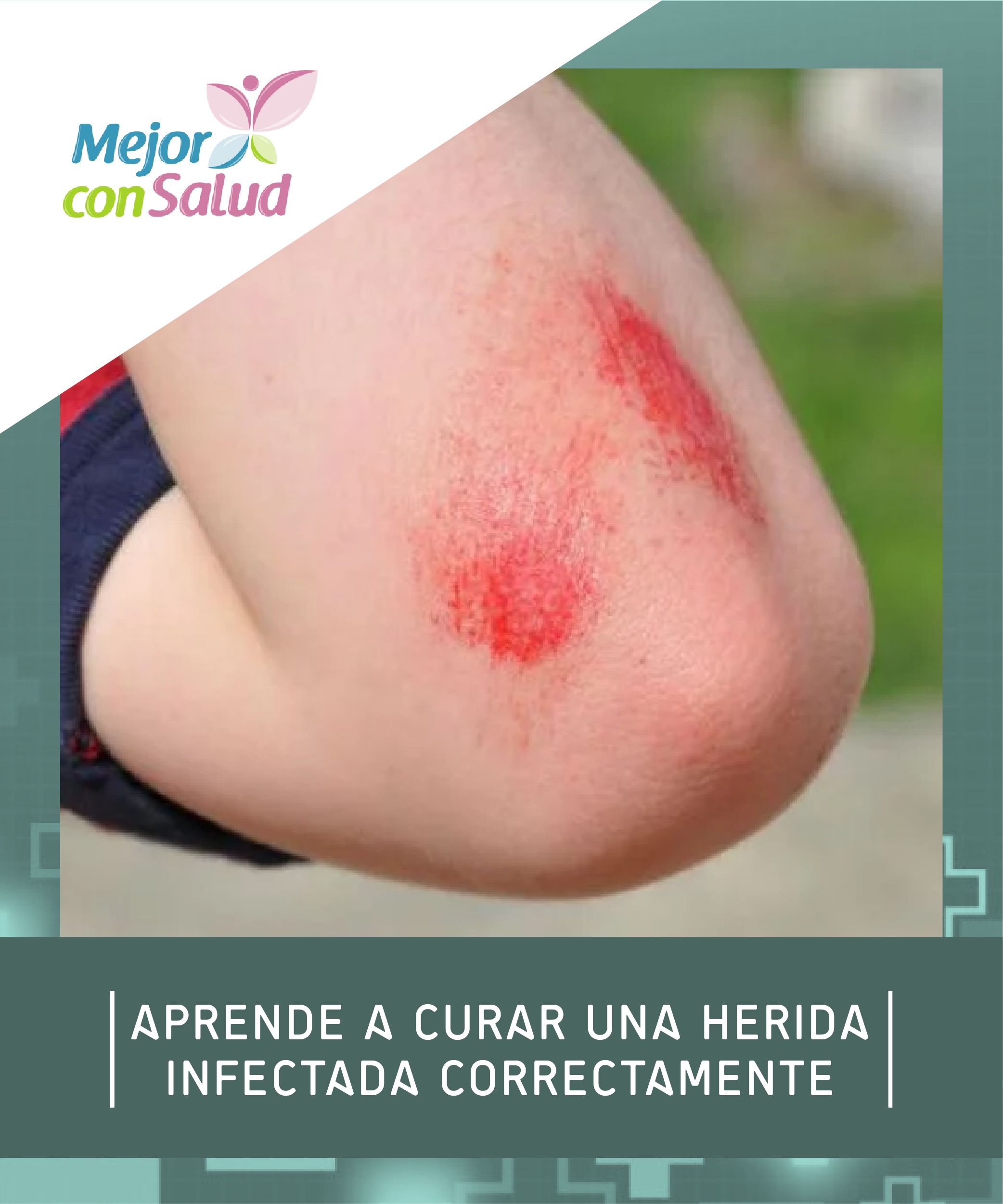 herida infectada tratamiento