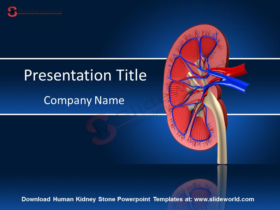 Human Kidney Stone Powerpoint Templates Slideworld