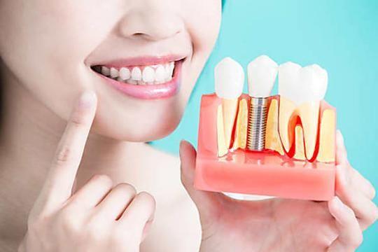 Ce que devraient vous coûter les nouveaux implants dentaires près de chez vous!