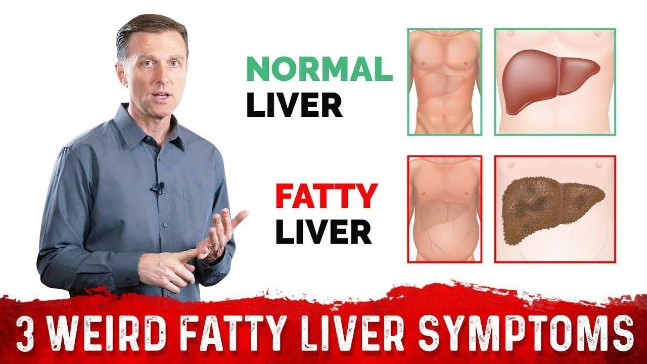 Pin On Liver Detox
