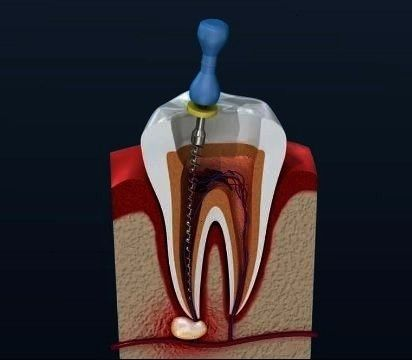 Know About Root Canal Treatment  Things To Know About Root Canal Treatment  To Know About Root Canal Treatment  Things To Know About Root Canal Treatment   Things To Know...