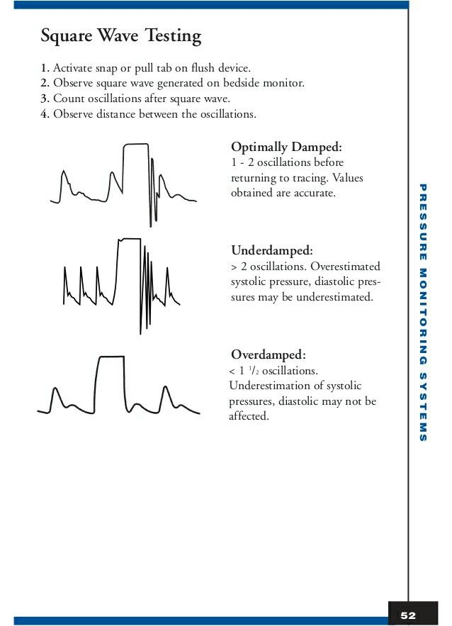 Arterial line square wave testing medical menagerie pinterest arterial line square wave testing ccuart Image collections