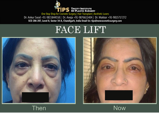 Can recommend. cosmetic facial institute surgery