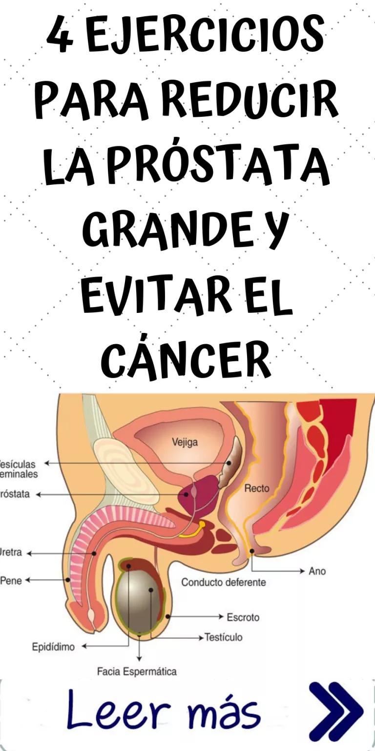 del cáncer de próstata es más grande