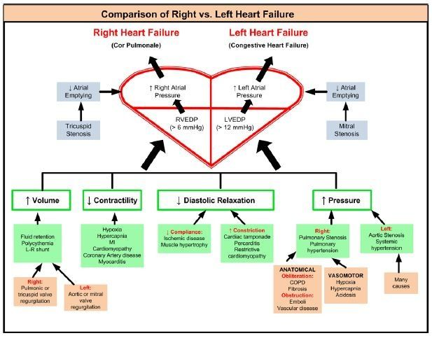 Pin By Ester Mcwilliams On About The Heart Heart Failure Left Sided Heart Failure Right Sided Heart Failure