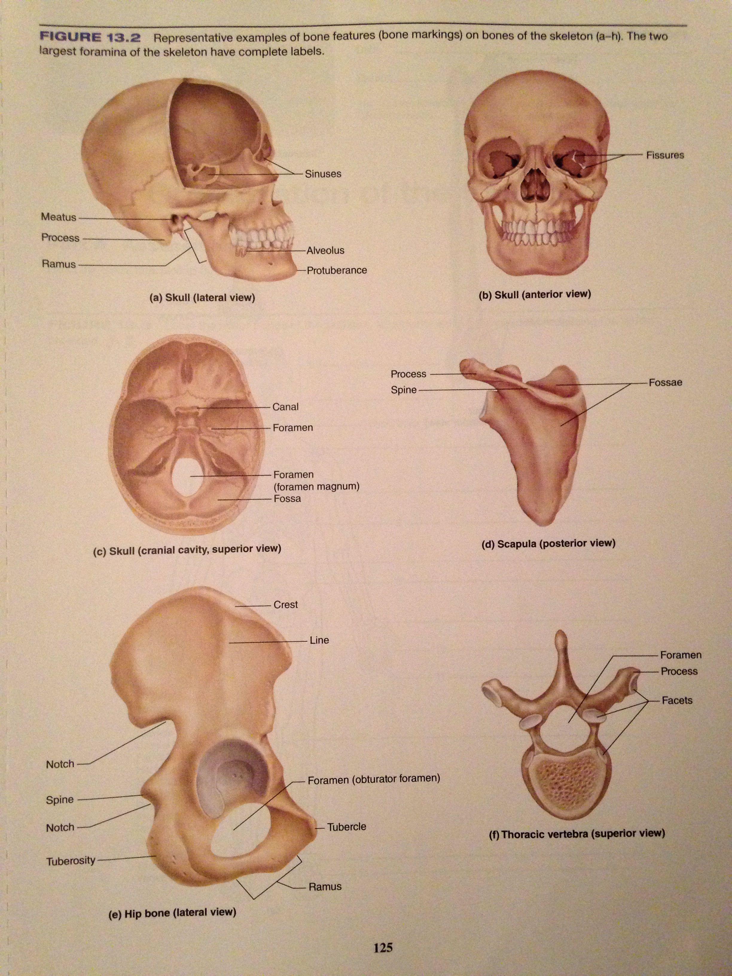Bone Markings Memorize Pinterest Radiology